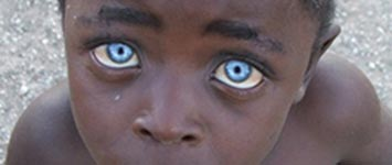 Young black African boy with natural blue eyes