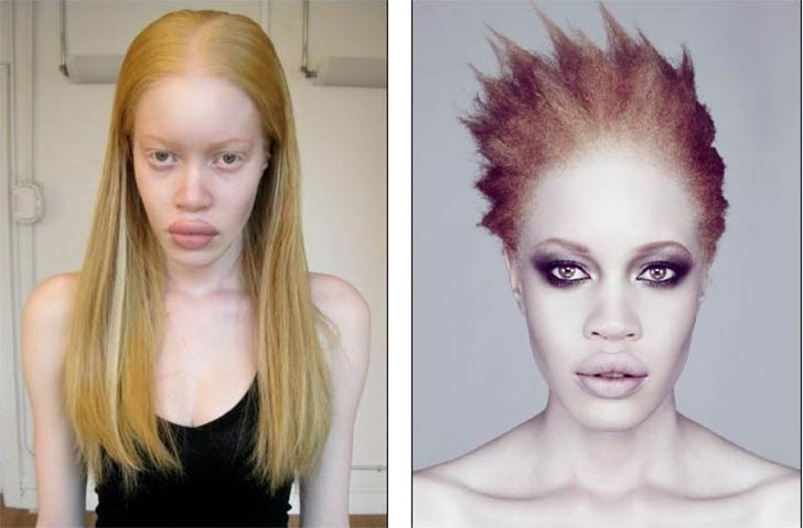 Diandra Forrest Black African American Albino Fashion Model