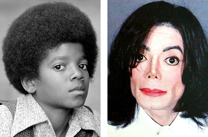 Key Facts Michael Jackson S Vitiligo Skin Disease Condition Oprah Interview
