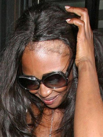 black-fashion-model-naomi-campbell-hair-loss-traction-alopecia-photo-picture