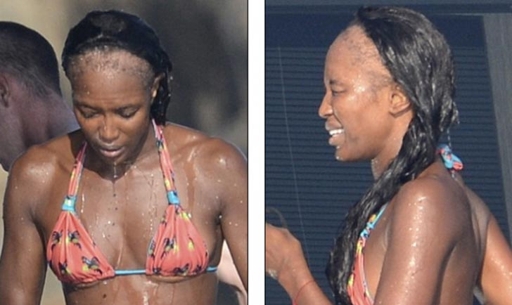 naomi-campbell-hair-loss-traction-alopecia-august-2012
