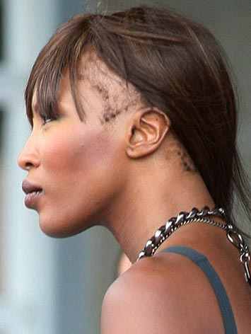 black-fashion-model-naomi-campbell-hair-loss-traction-alopecia-photo-picture1